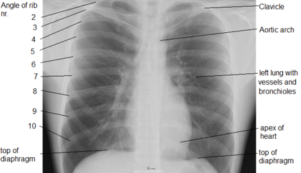 X-ray of chest, showing top of diaphragm. Chest labeled.png