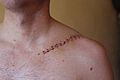 Clavicle (re)fracture (6024801949).jpg