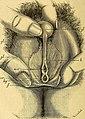 Comptes rendus des séances de la Société de biologie et de ses filiales (1884) (20648440636).jpg