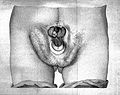 Deformed penis, 19th century illustration Wellcome L0028897.jpg