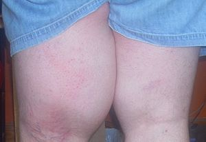 English: Left thigh showing edema caused by li...