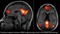 Figure 8.fMRI image showing activity in the default mode network during hypnosis (Graner et al.,(2013).png