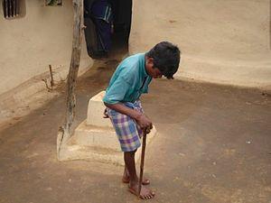 Fluorosi in Chhattisgarh.jpg