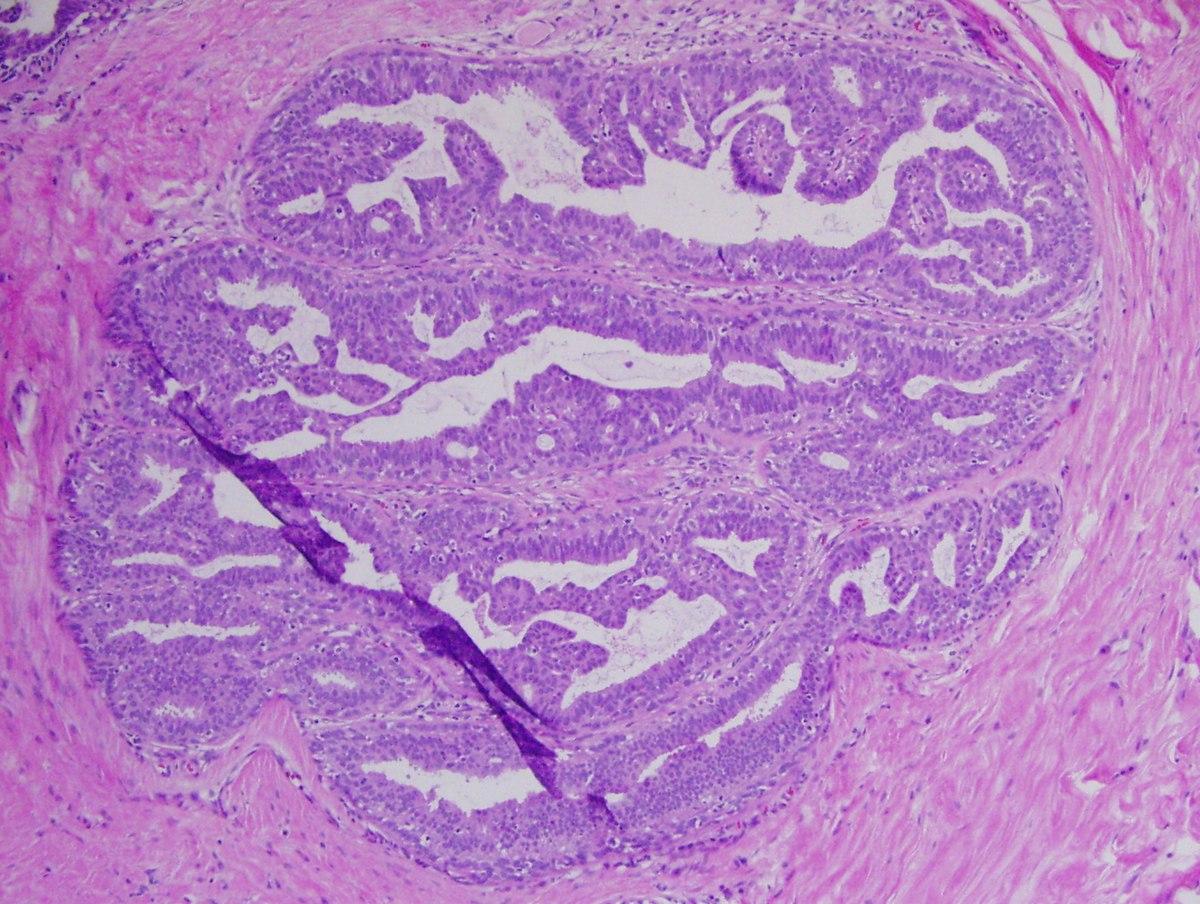 condyloma acuminata pathology
