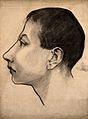 Head of a mentally retarded boy, used as an exemplary case o Wellcome V0009516.jpg
