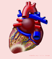 Heart with P infarct (CardioNetworks ECGpedia).png