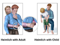 Heimlich Adult & Child.png