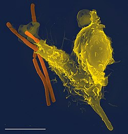 A scanning electron microscope image of a single neutrophil (yellow), engulfing anthrax bacteria (orange).