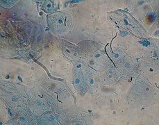 Oral epithelium - Epithelial cells - Methylene blue dye - View 40X.jpg