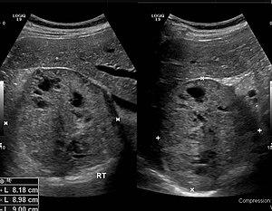 Pheochromocytoma 0001.jpg