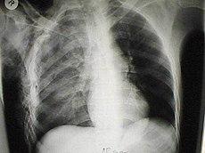 fractura+de+costilla+tratamiento+quirurgico