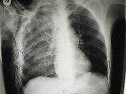 фото перелом рёбер