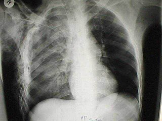Chest radiograph of a flail chest associated with right sided