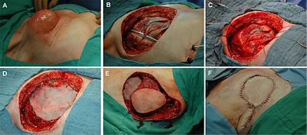Biopsie an einer Brust