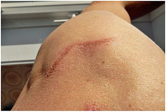 Tattoo removal - scarring from laser tattoo removal