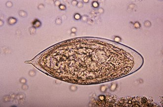 Schistosoma - Image: Schistosoma haematobium egg 4843 lores