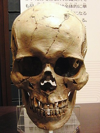 Jōmon people - Male skull of the late Jōmon Period (replica). Excavated at Miyano Kaizuka (Iwate Prefecture). Exhibition in National Museum of Nature and Science.