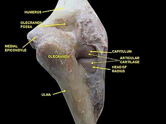 Medial epicondyle of the humerus - Image: Slide 1bgbg