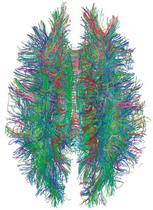 Nerve tract - White matter tracts within a human brain, as visualized by MRI tractography