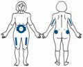 Επιλογή σημείων στο σώμα2-φλεβοκέντηση.png