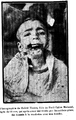 13 year old boy, wounded jaw-.png