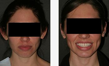 English: Plastic surgery; Otoplasty; 2-plate p...