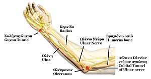 Anatomy of Ulnar nerve.JPG