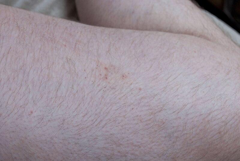 File:Bedbug bites on human thight 1.jpg