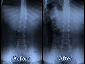 English: X-ray of child's spine before and one...