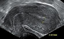 Miscarriage - Wikipedia