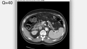 File:Continuously varied JPEG compression for an abdominal CT scan - 1471-2342-12-24-S1.ogv