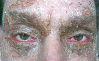 Ectropion medical condition in which the lower eyelid turns outwards