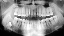 wisdom tooth - cyst