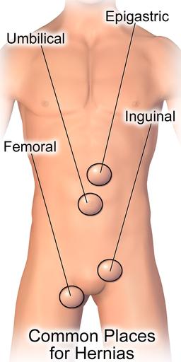 Ernia epigastrica - Sintomi - Intervento - Convalescenza