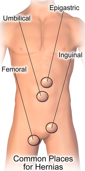 File:Hernia Common Sites.png