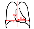 Herz-thorax-quotient b.png