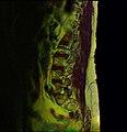 Lumbosacral MRI case 10 04.jpg