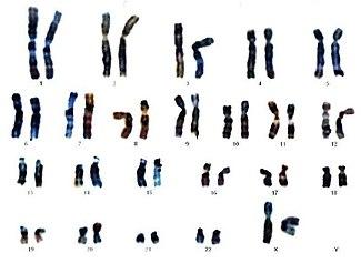Mapa genético o cariograma.jpeg