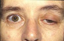 Myasthenia gravis - Wikipedia, the free encyclopedia