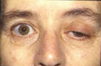 End-plate potential - Patient with myasthenia gravis showing typical symptom of eyelid droop