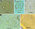 Parasite170024-fig3 - Physaloptera spp. eggs found in soil sample.png