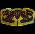Pelvic MRI 05 04.jpg