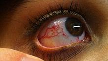 Ataxia-telangiectasia - Wikipedia
