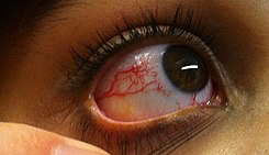 Photo Ocular telangiectasia in a person with A-T.jpg