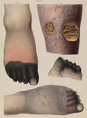 Plate II Mortification (gangrene), Robert Carswell 1830s Wellcome L0074380.jpg