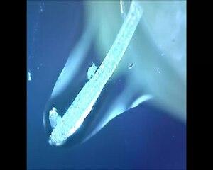File:Rädertierchen (Rotifera) an der Wurzel der Wasserlinse 200-fache Vergrößerung.webm