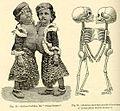 Radica&Doodica(1896).jpg