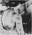 """""""The patient's skin is burned in a pattern corresponding to the dark portions of a kimono worn at the time of the explos - NARA - 519685.tif"""