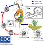 Ascariasis LifeCycle - CDC Division of Parasitic Diseases.png