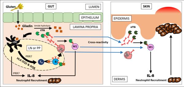 Dermatitis Herpetiformis Wikipedia